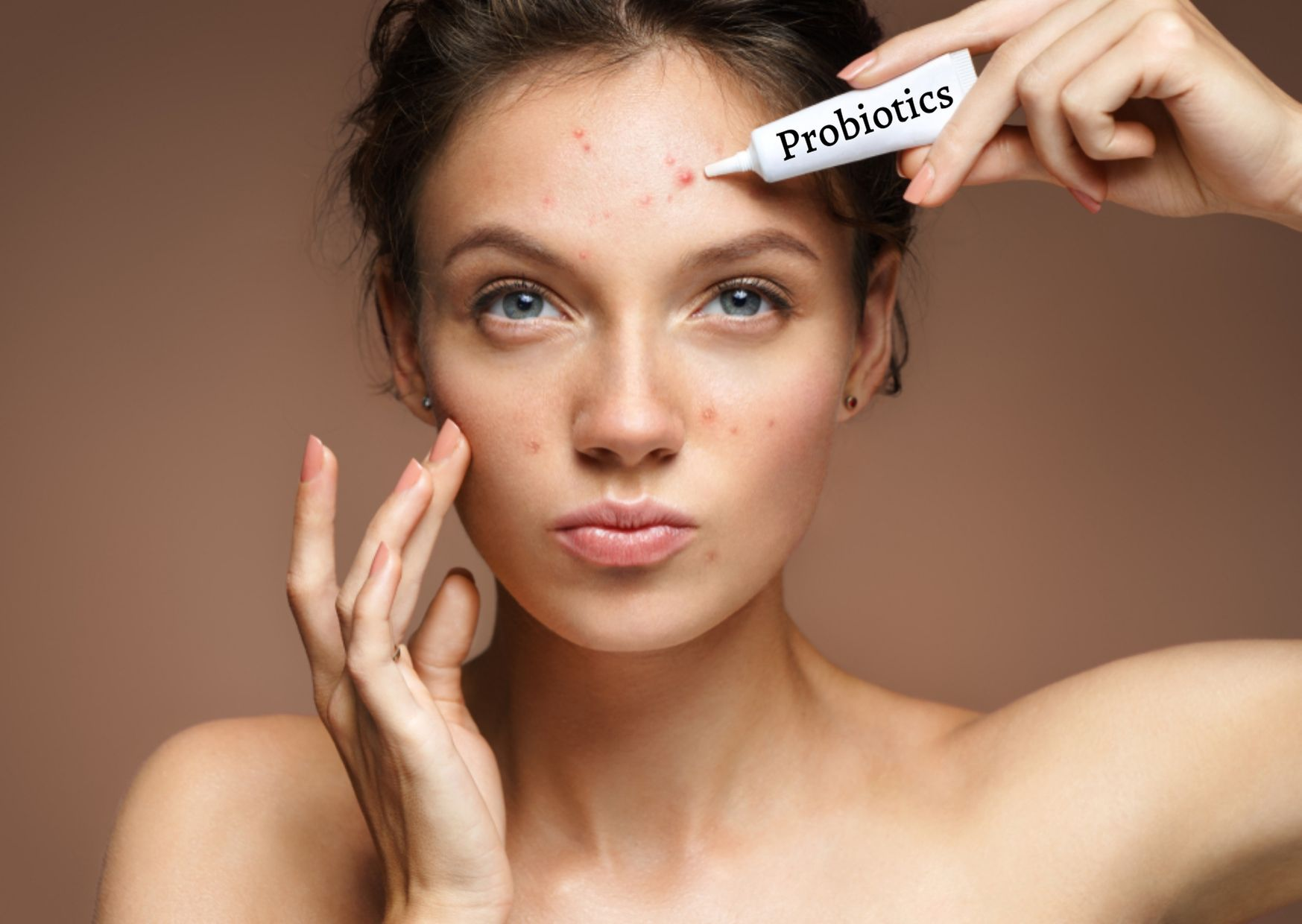 How Probiotics can fight acne and improve gut health