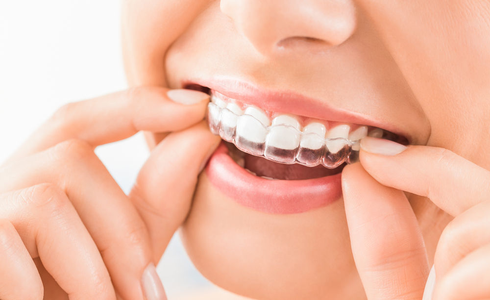 Transform your smile with Invisible Braces