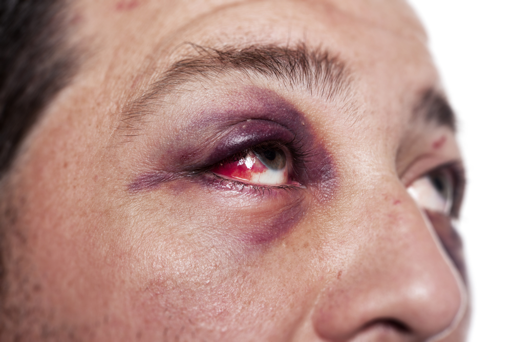 How patients are suffering from Ocular trauma during COVID-19