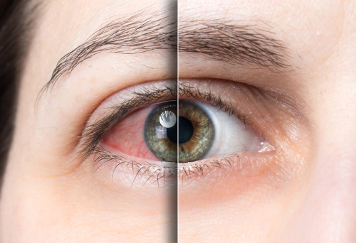 Age-related macular degeneration and how it affects old people