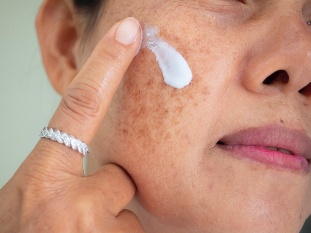 Unmasking the causes and treatments of melasma
