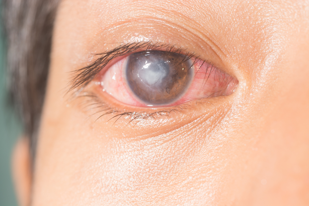 Fungal keratitis eye infection blinds over half a million in one eye