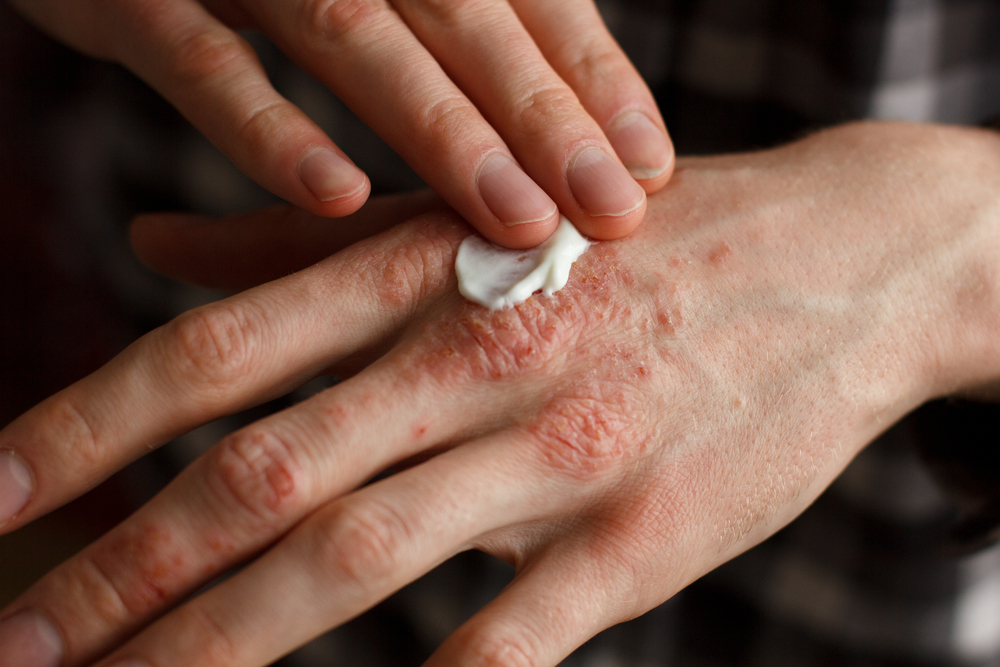 Which Psoriasis Treatments During Pregnancy are safe?