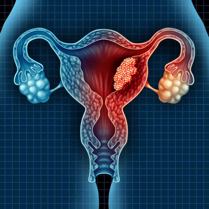 Cervical cancer in India is the most common gynecological cancer diagnosed in women