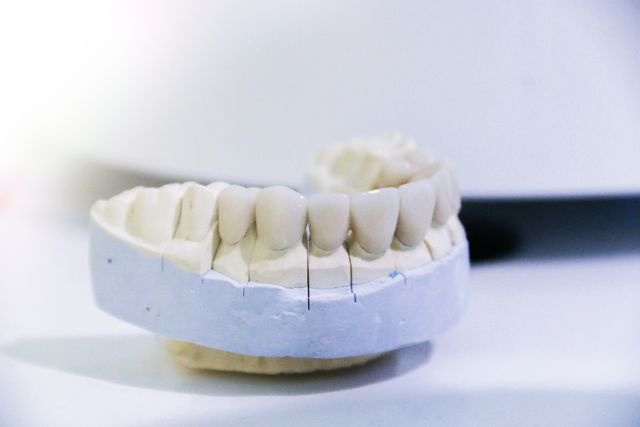Dental 3D printing: how does it impact the dental industry