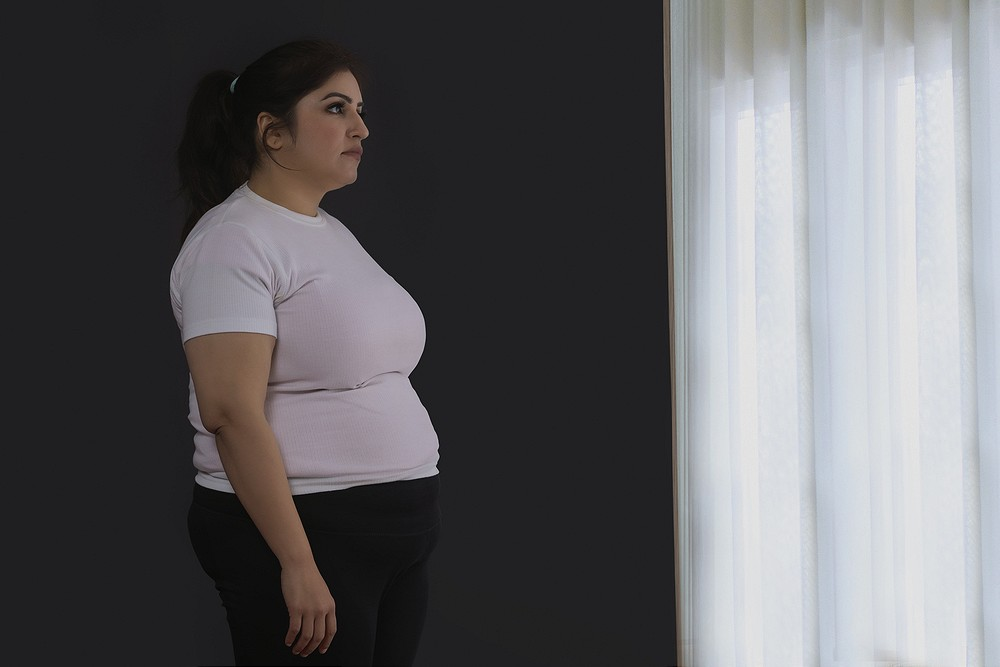Obesity protects against death in severe bacterial infection
